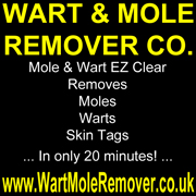 How to remove MOLES, (nevi) and WARTS easily.